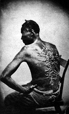 Marcas da chibatada no escravo Peter